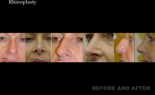 rhinoplasty-p17