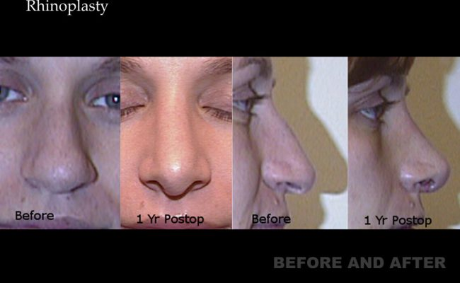 rhinoplasty-p20