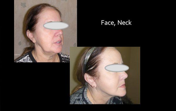 Facelift & Neck Before & After