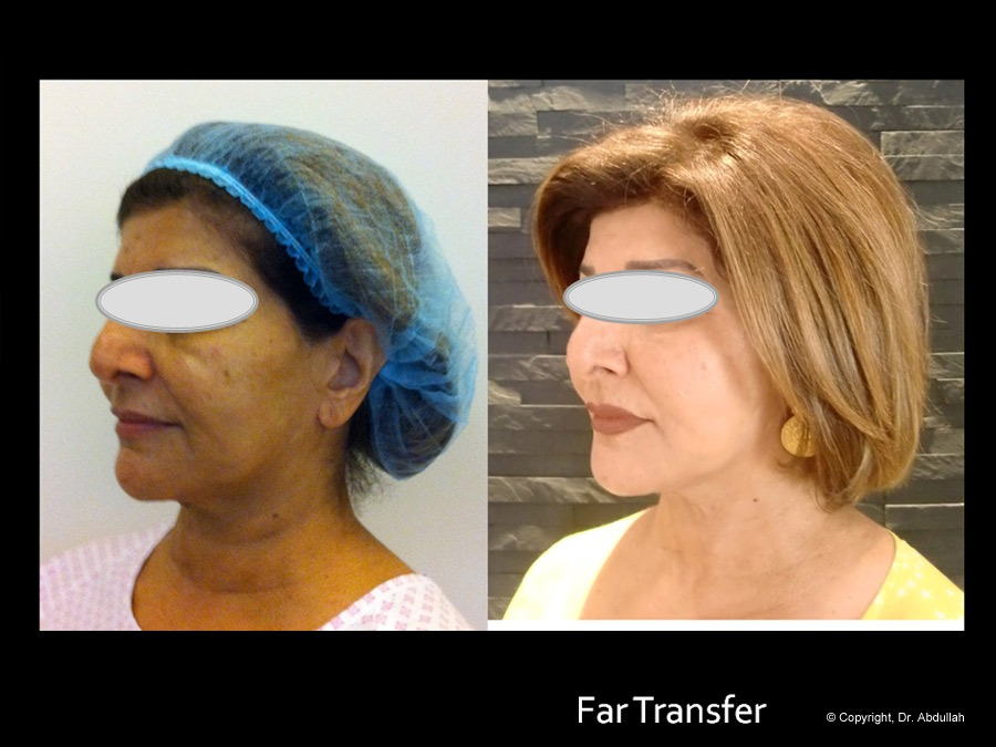 Fat Transfer Before & After