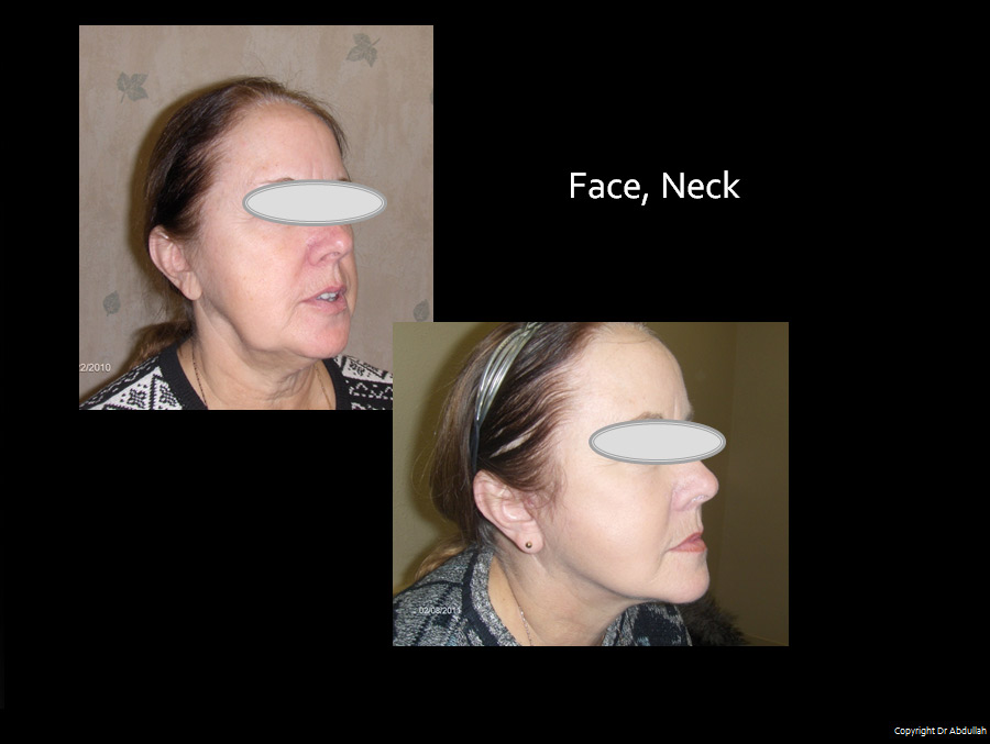 Facelift & Neck Before & After