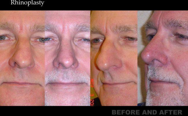 rhinoplasty-p11