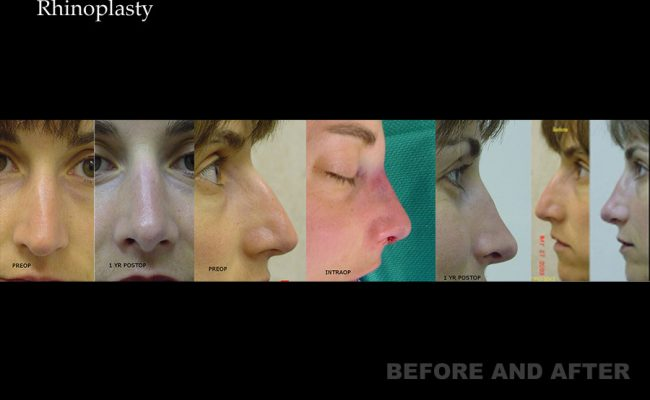 rhinoplasty-p14