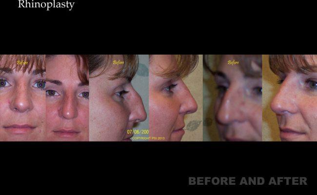 rhinoplasty-p2
