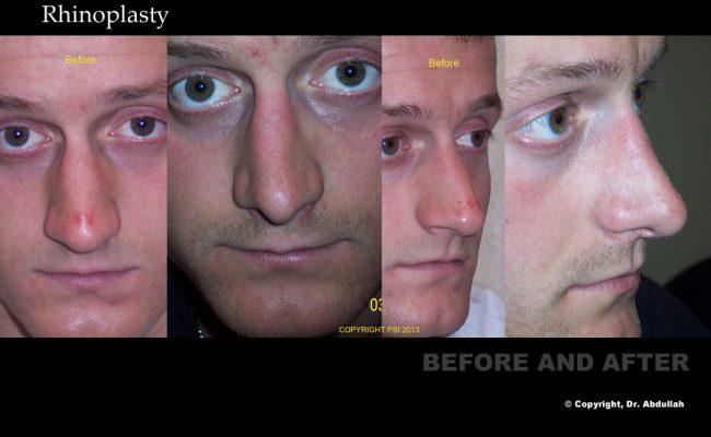 rhinoplasty-p4