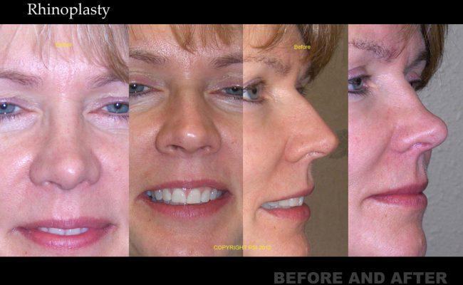 rhinoplasty-p6